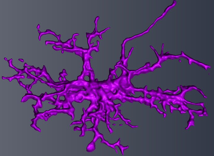 Autism in males linked to defect in brain immune cells, microglia