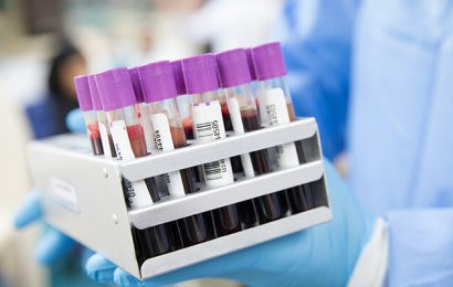 Novel coronavirus serological blood testing to identify past exposure