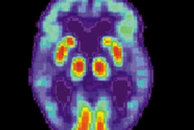 Alzheimer's: New gene may drive earliest brain changes