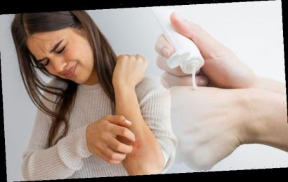 Eczema cream: The best treatment for protecting your skin's vulnerable barrier