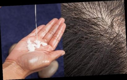 Losing hair? Applying this natural solution generated hair growth within three months