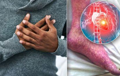 Heart attack warning: Does your skin look like this? The hidden sign of heart disease