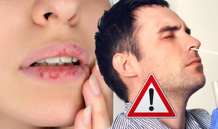 The hidden sign of COVID on your lips – how to find your risk of coronavirus in your mouth