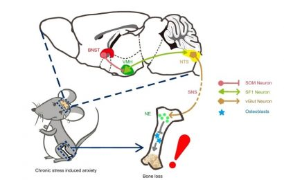 How does chronic stress induce bone loss?