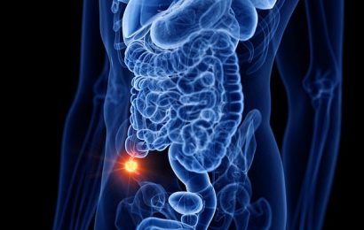 Antibiotics just as effective for appendicitis as surgery, study finds