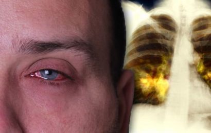 The lung cancer symptom on your face you may be ignoring – does your eye look like this?