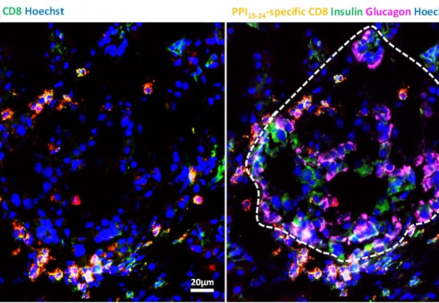 Diabetes researchers spot dangerous T cells in the pancreas—even in healthy people