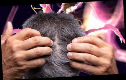 Parkinson's disease symptoms: Degenerative condition linked to dandruff – here's how