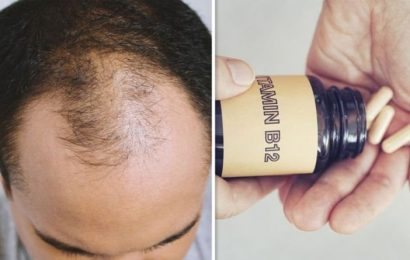 Hair loss treatment: Vitamin B12 supplementation could stop your hair thinning