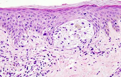Age is a primary determinant of melanoma treatment resistance, two studies find