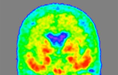 Novel form of Alzheimer's protein found in spinal fluid indicates stage of the disease