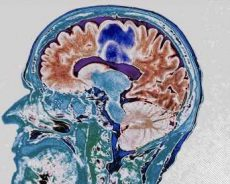 Existing drugs may cut off 'fuel supply' to an aggressive brain cancer