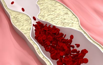 Preventing and Managing Atherosclerosis