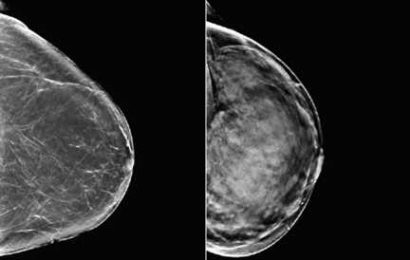 Algorithm analyzes mammograms, signals need for more breast cancer screening
