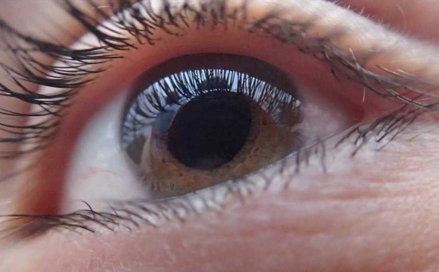 Researchers identify 127 glaucoma genes in largest study of its kind