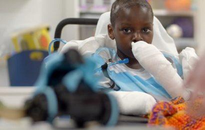 Michigan boy with rare coronavirus-related inflammatory illness endures 4 amputations