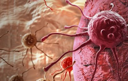 Comprehensive review shows benefits and harms of screening for lung cancer