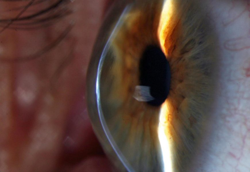 Genetic study uncovers hidden pieces of 'eye disease puzzle'