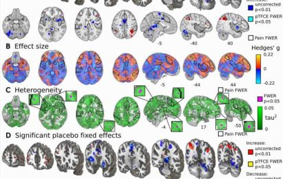 New study gives the most detailed look yet at the neuroscience of placebo effects
