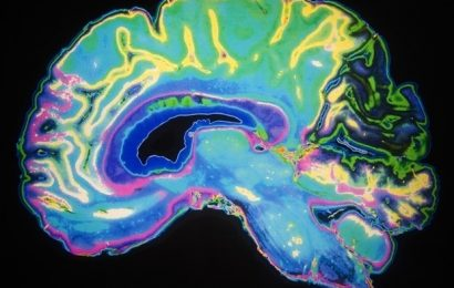 BrainMap analysis strongly affirms 'network degeneration hypothesis' theory
