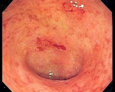 New Oral Protein Shows Promise for Ulcerative Colitis