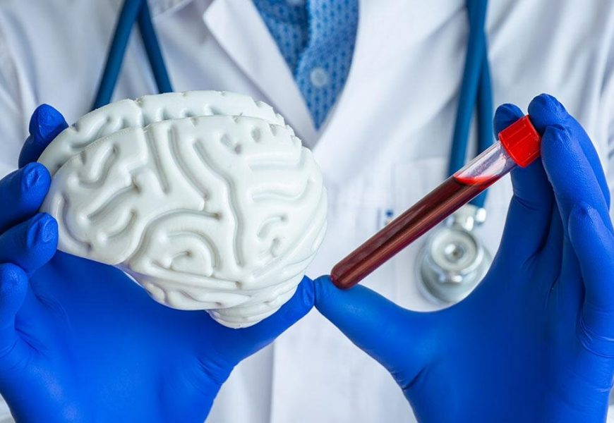 Blood cholesterol in middle age linked to dementia and Alzheimers disease more than 10 years later