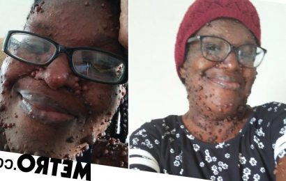 Mum with 200 tumours all over her body says strangers stare at her in the street