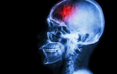 Don and Karen Cohn's $2.5 million gift supports UC San Diego Health neurosurgery program