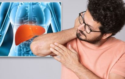 Liver failure symptoms: Four easily overlooked signs your liver could be failing