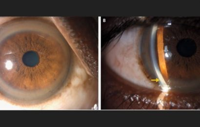 Why did this man have copper-colored rings in his eyes?